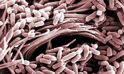 Bacteria in airway affected by cystic fibrosis