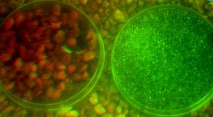 Urine and plant seeds appear in dishes with high contrast