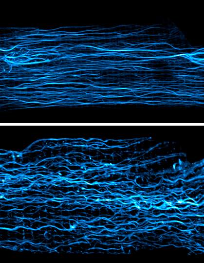Top panel shows elongated microtubules; bottom panel shows microtubules buckling during contraction