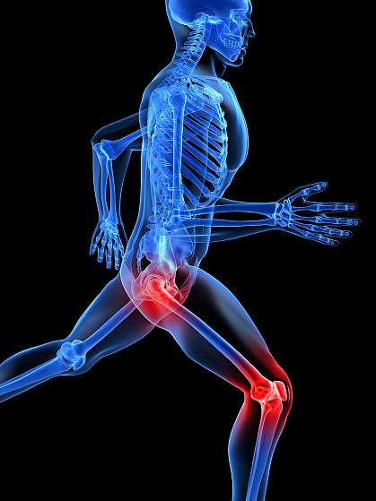 Illustration of human skeleton with hip and knee joints glowing red.