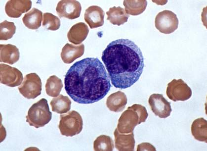 Micrograph of Giemsa-stained monocytes