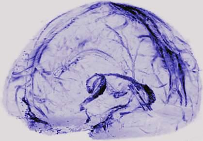 Lymphatic vessels in human brain