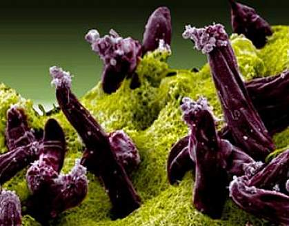 Scanning electron micrograph of Plasmodium invading a mosquito midgut.