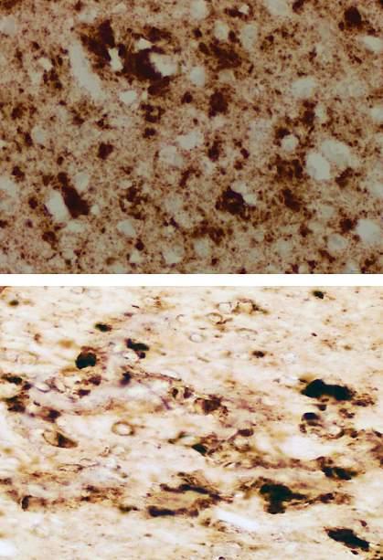 Diseased brain tissue