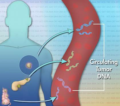 Illustration with arrows showing DNA moving from tumors into the bloodstream
