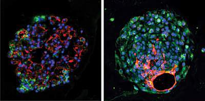 New stem cell identified for lung tissue regeneration | National
