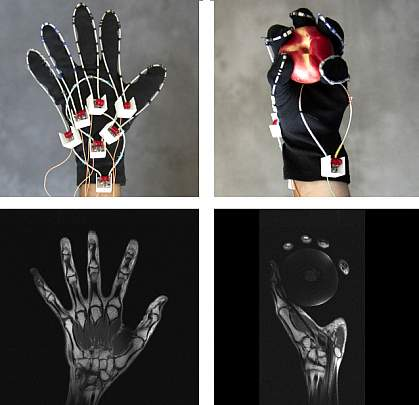Photos of MRI glove on hand and MRI scans of the hand