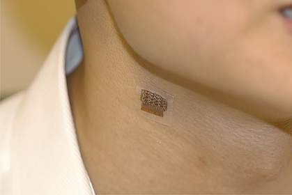 Wearable ultrasound patch on neck.