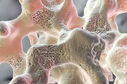 Spongy bone tissue.