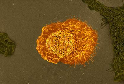 Colorized scanning electron micrograph of a macrophage