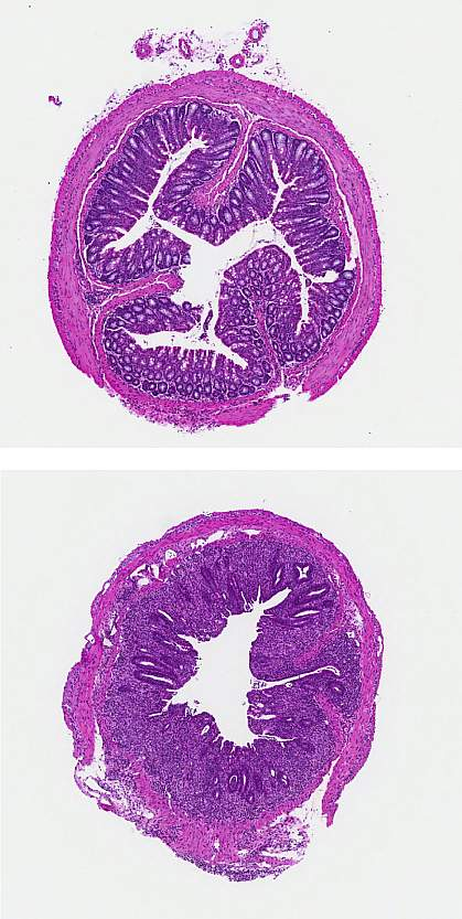Sections of mouse colon tissue
