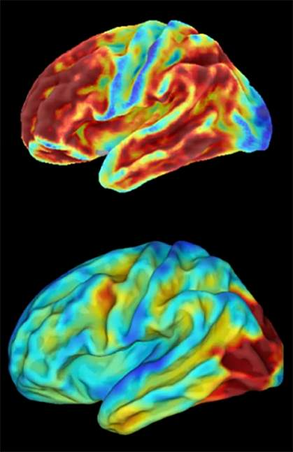 Brain images of woman with inherited condition that causes early-onset Alzheimer's disease