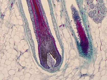 Microscope image of a hair follicle in human skin