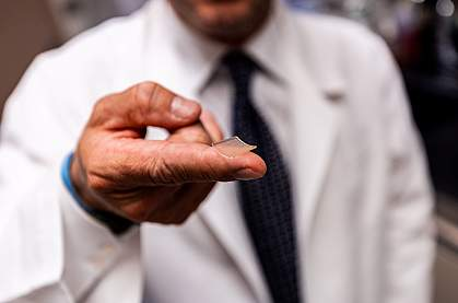 Researcher holding microneedle array on fingertip