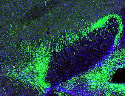 Pain suppression neurons in mouse brain.