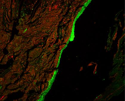 Immunofluorescent image of mucus barrier around red mass