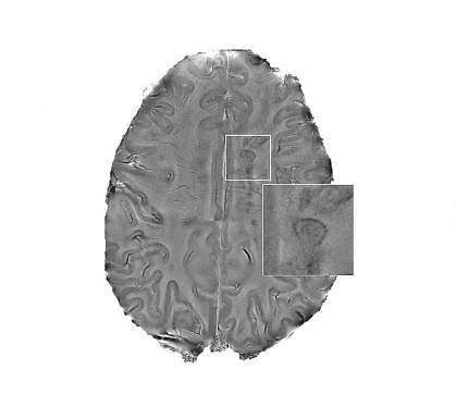 MRI scan of a human brain with multiple sclerosis
