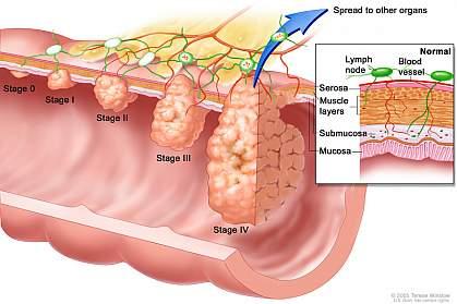 Illustration of colorectal cancer stages.