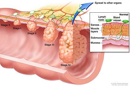 Illustration of colorectal cancer stages.