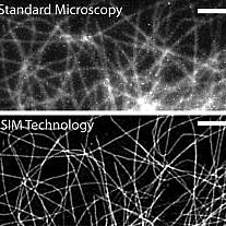 Structured Illumination Microscopy