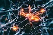 Neuron system disease - stock photo