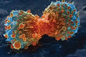 Colored scanning electron micrograph of a lung cancer cell during cell division.