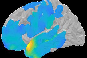 Computer-generated brain scan.