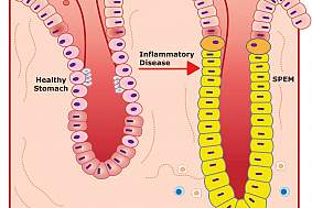 Illustration of healthy and diseased stomach glands