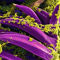 The bacterium Yersinia pestis (yellow), which causes bubonic plague, on the spines of a flea.
