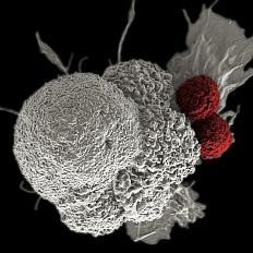 Shown here is a pseudo-colored scanning electron micrograph of an oral squamous cancer cell (white) being attacked by two cytotoxic T cells (red), part of a natural immune response. Nanomedicine researchers are creating personalized cancer vaccines by loading neoantigens identified from the patient's tumor into nanoparticles. When presented with immune stimulants, this activates the patient's own immune system, leading to expansion of tumor-specific cytotoxic T cells.<br />