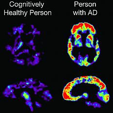 Amyloid imaging and other biomarker advances detect Alzheimer's-related changes taking place in the living brain.