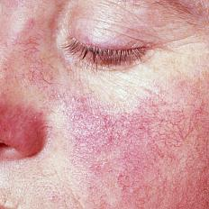 A woman with a characteristic lupus skin rash — the so-called butterfly rash — across her nose and cheeks.
