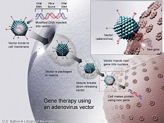 A new gene is injected into an adenovirus vector, which is used to introduce the modified DNA into a human cell.  If the treatment is successful, the new gene will make a functional protein.