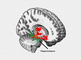Brain imaging after one night of sleep deprivation revealed beta-amyloid accumulation (red) in the hippocampus and nearby regions.