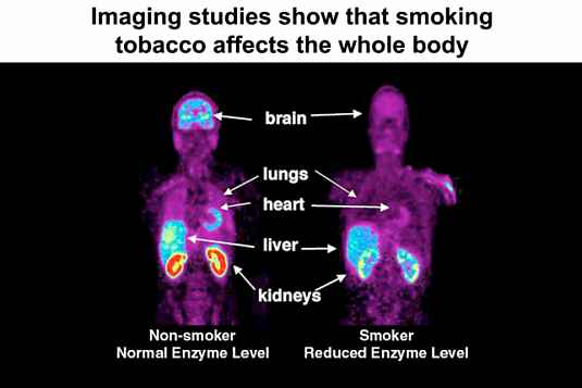 """smoking kills more americans than any other diseases As the fda moves to ban trans fats, data show that alcohol and cigarettes are   20,000 heart attacks and 7,000 deaths related to heart disease annually   cigarette smoking is estimated to cause """"more than 440,000 deaths."""