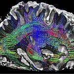 Illustration of a human brain.