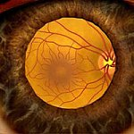 Illustration showing the retina as seen through a dilated pupil.