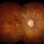 The retina, the light-sensitive tissue at the back of the eye.