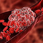 An illustration of a blood clot in a blood vessel