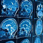 Magnetic resonance imaging (MRI) of the brain