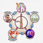 Illustration of COPD cycle