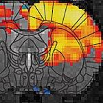 MRI scan-thumb