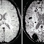 MRI scans of two brains