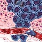 Illustration of cancer cells