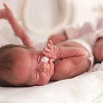 Image of premature infant.