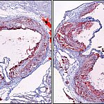 Cross-section images of mouse arteries