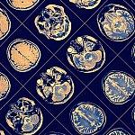 MR image of human brain.
