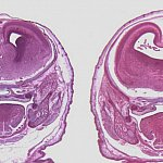 Stained sections of fetal mouse brains.