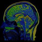 Brain scan stock image