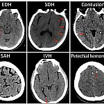 Images of brain CT scans taken after mild head injury